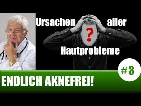 Ozontherapie in Coxarthrose Gelenke