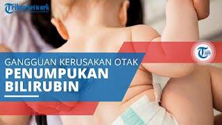 Kernikterus, Gangguan Kerusakan Otak yang Sering Terjadi pada Bayi akibat Penumpukan Bilirubin