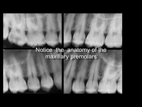 Three-Rooted Maxillary Premolars