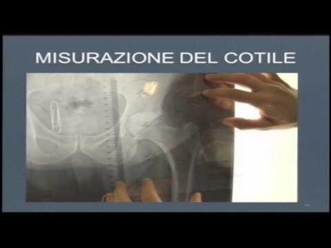 Stenosi spinale del toracica