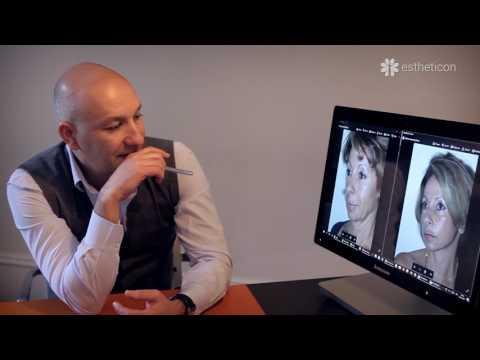 Les opérations cosmétiques sur la personne jusquà et après les photos
