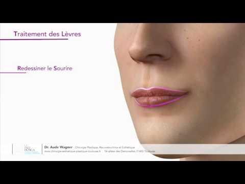 Remodelage des lèvres par acide hyaluronique