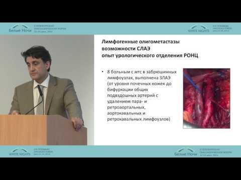 Простата с гиперплазией