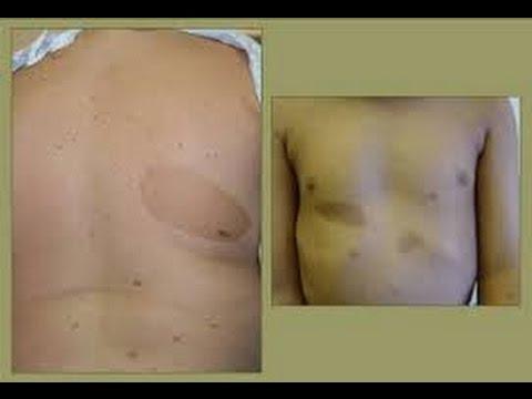 Procedure gumaan ang edad spots