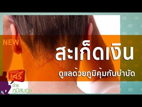 Neurodermatitis ยา Oriental