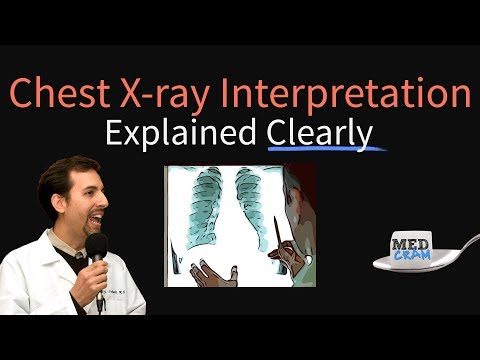 Chest X-Ray Interpretation Explained Clearly - How to read a CXR ...