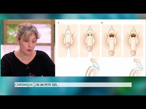 Les déclarations vers le traitement de la varicosité