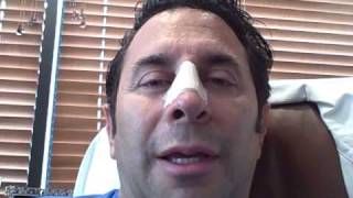 Dr. Paul Nassif — Nasal Injury Journal Day 1