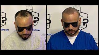 Receded Hairline Restoration - Kentucky