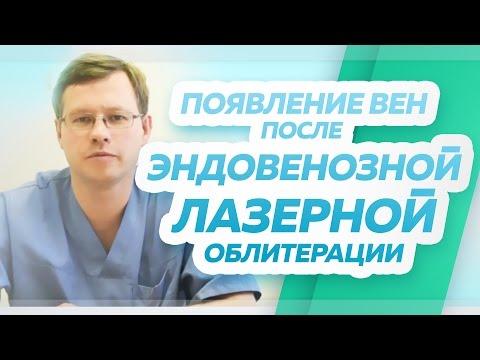 Die Thrombophlebitis des Gastroknemius die Behandlung