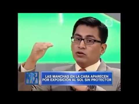 Manchas en la cara: Tratamientos láser para estrias, arrugas y manchas en la cara – Dr Aparcana