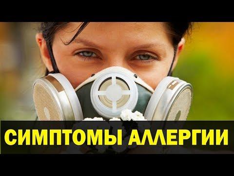 Аюрведа от Аллергии. Симптомы аллергии. Аюрведа Здесь