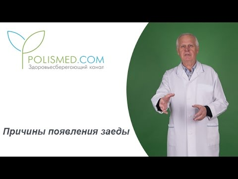 Повышение инсулина при глюкозотолерантном тесте