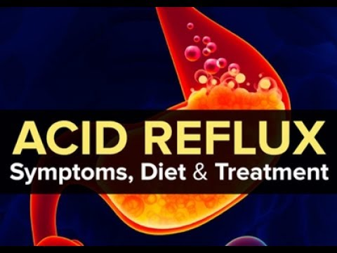 Video How To Cure Acid Reflux (GERD) and Heartburn Fast and Naturally (Best Home Remedies)