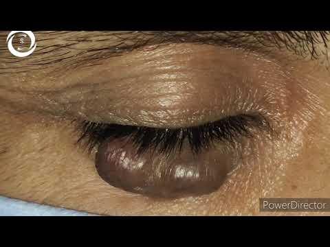 Pentoxifillin în varicose vene recenzii