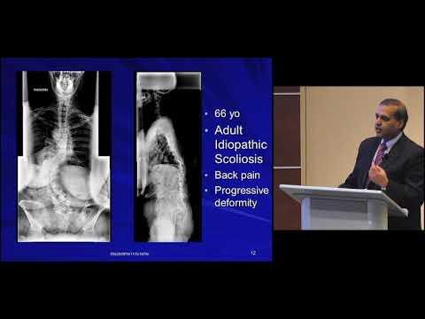 Betriebsverfahren für die Behandlung von Osteoarthritis