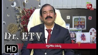 Watch Frequency of Stent | Dr ETV | 13th May 2019 | ETV Life