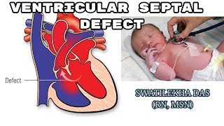 Ventricular septal defect (VSD) - definition, causes, symptoms & pathophysiology, treatment