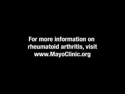Drug Treatment for Rheumatoid Arthritis