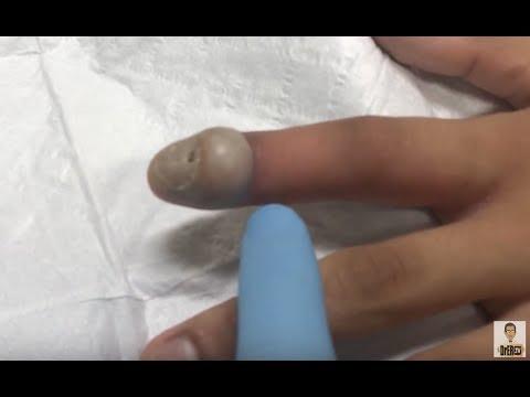 Procedimento de tratamento de um fungo de duração de pregos