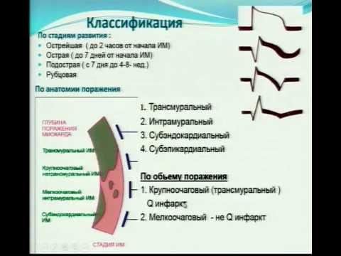"Телелекция ""ОСТРЫЙ ИНФАРКТ МИОКАРДА"""
