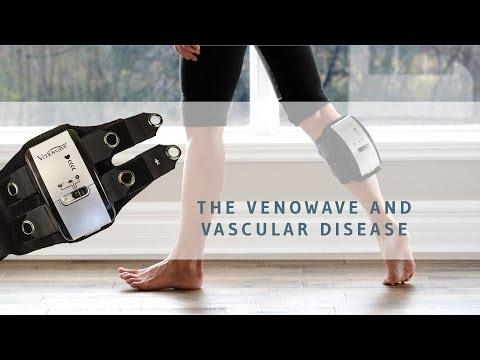 Συσκευή διαλείπουσας συμπίεσης Venowave για αγγειοπάθειες