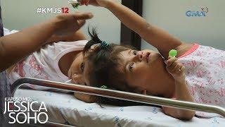 Kapuso Mo, Jessica Soho: Ang pagsubok ng conjoined twins na sina Chiara at Charina