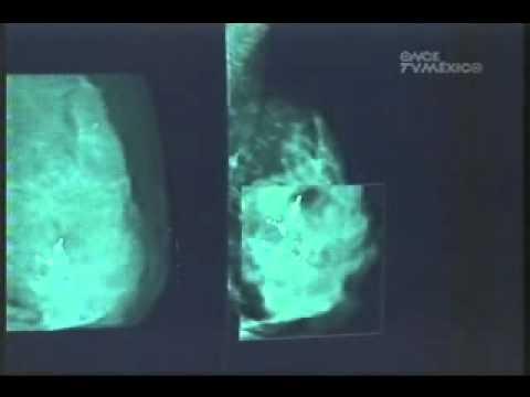 Tratament pentru oxiuri la gravide