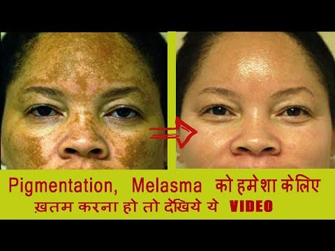 Cream pigmentation arbutin