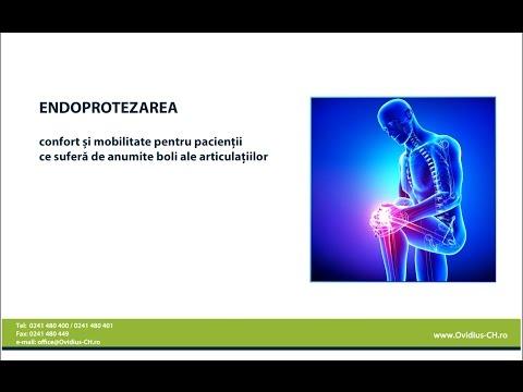Unguent pentru osteochondroza recenziilor coloanei vertebrale cervicale
