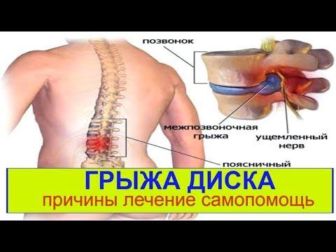 Архангельск лечение спины