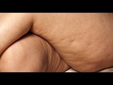 El entrenamiento circular a todos los grupos de los músculos para el adelgazamiento