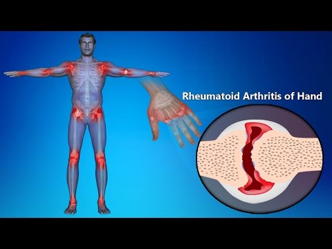 Video Rheumatoid Arthritis Of Hands: Symptoms, Signs, Treatment