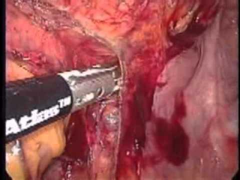 Papilloma virus gravidanza a rischio