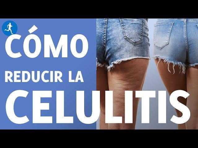 TODO LO QUE TIENES QUE SABER SOBRE LA CELULITIS ¿Cómo reducirla? | Vitónica