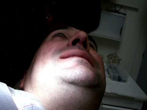 Vlok adenoma prostatico