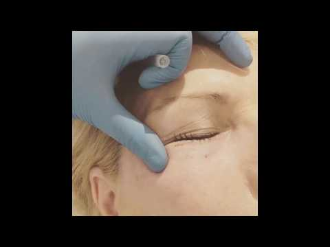 Plexr Before and After - nonsurgical Blepharoplasty
