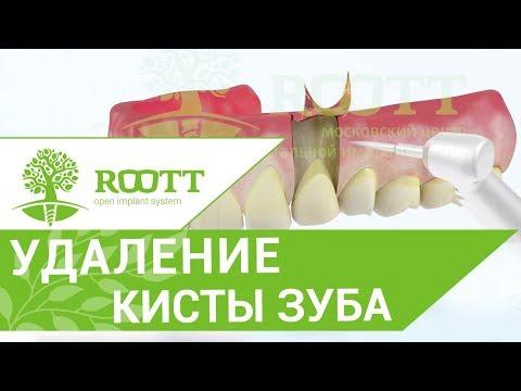 Резекция верхушки корня зуба. ✂ Как проходит операция резекции верхушки корня зуба?