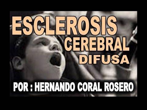 CRF con hipertensión