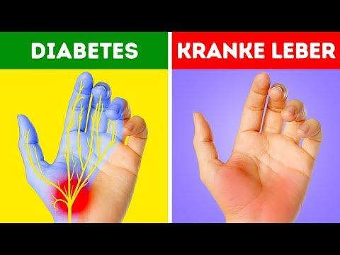 Heidelbeere Blatt Bohnen und Diabetes