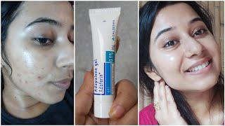 Dermatologist Recommended Best Cream to Remove Pimple Marks, Dark spots,Pigmentation, acne scars