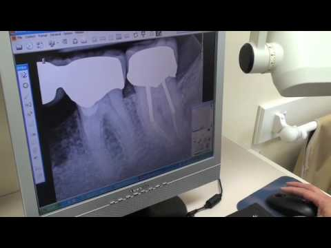 Video The Benefits of Digital Radiography