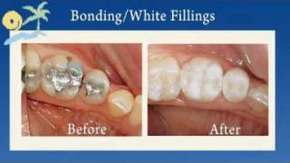 Long Island  Composite Fillings  ESI Dental Care