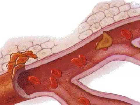 Erekcijos prostatos chirurgija