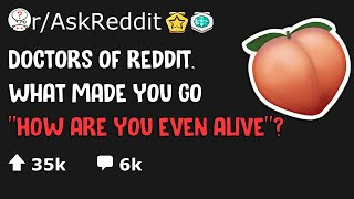 """Doctors of Reddit, what made you go """"HOW are you even ALIVE!??!"""""""
