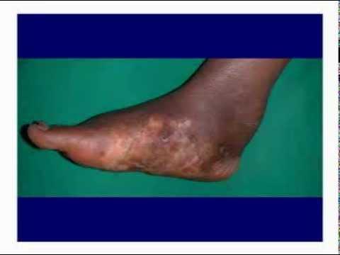 Ginnastica dopo rimozione di una vena su una gamba