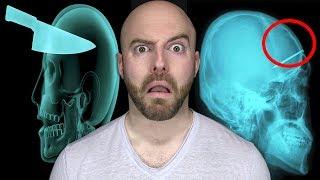 10 DISTURBING Things Found Inside Living People!