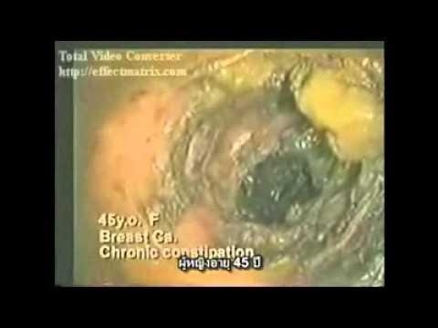 Polypore เห็ดปรสิต