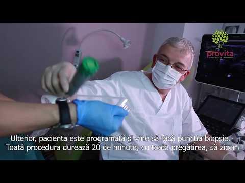 Refacerea tratamentului vizual al bolilor oculare