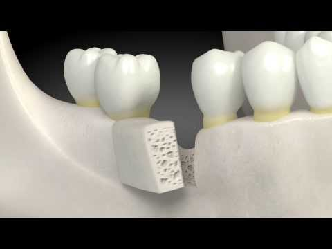 What is a dental bone graft?